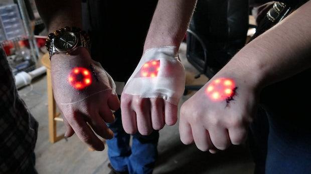 LEDs unter der Haut: Warum Biohacker keine geltungsbedürftigen Freaks sind